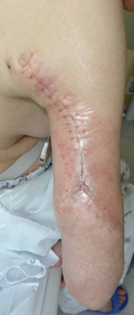 A completely healed lesion on the right arm of the patient, after surgical debridement and local flap coverage with a split-thickness skin graft were performed.
