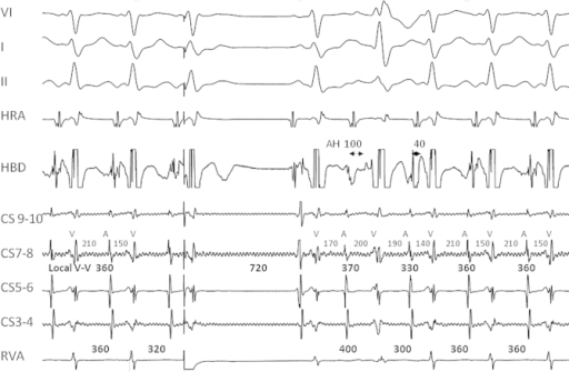 Intracardiac electrogram during the tachycardia. The tracings from the top to bottom are leads V1, I and II, followed by intracardiac electrograms from high right atrium (HRA), distal His bundle (HBD), coronary sinus proximal to distal (CS), and the right ventricular apex (RVA). A paced beat from the RVA during His refractoriness terminates the tachycardia and the next sinus beat reinitiates the tachycardia. The QRS morphology of the paced beat suggests ventricular fusion.