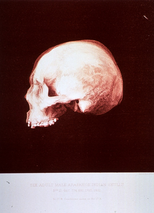 <p>Black and white print of one of 6 adult male Arapahoe Indian skulls. This print is no. 17b that appears in &quot;On composite photography as applied to craniology; on measuring the cubic capacity of skulls, memoirs of the National Academy of Sciences; volume 3, 13th memoir&quot; by J.S. Billings and Washington Matthews.</p>