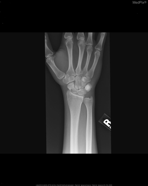 AP Radiograph of the Right Wrist showing a transverse lucency in the scaphoid bone consistent with a scaphoid waist fracture.  No other fractures seen.  No foreign bodies.