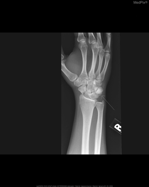 Oblique Radiograph of the Right Wrist showing a stable fracture at the base of the triquetrum.