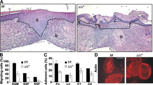 Raf-1 ablation affects wound healing in vivo and keratinocytes motility, adhesion, and shape in vitro. (A) Hematoxylin/eosin-stained full thickness skin section, 12 d after wounding. The wound margins (arrows) have not yet met in the c-raf-1Δ/Δep animals. C, crust; E, newly formed epidermis; D, dermis. (B) Impaired migration in Raf-1 KO keratinocytes. Migration was assayed in a modified Boyden chamber assay using KGM (10 h), EGF (25 ng/ml, 15 h), or KGF (20 ng/ml, 15 h) as chemoattractants. (C) The percentage of cells adhering to different ECM components was determined in a 15-min adhesion assay (Fn, fibronectin; Ln, laminin; C1 and C4, collagens I and IV). Integrin-independent adhesion on BSA-coated surfaces was subtracted from the values plotted. Values are means (±SD, vertical bars) of three individual experiments. (D) Morphology of keratinocytes stained to visualize the actin cytoskeleton (rhodamine-conjugated phalloidin). Bar, 15 μm.
