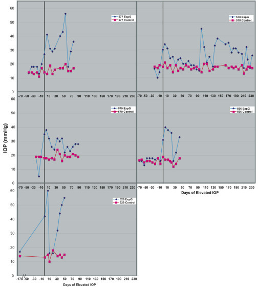 Intraocular pressure measurements for five paired glaucomatous samples. Intraocular pressure measurements from day of first laser in ExpG eye to sacrifice. Day 0 (vertical line) is the first time intraocular pressure was above 25 mm Hg.