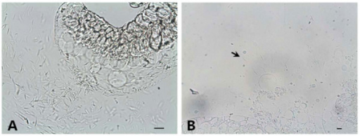 Sporozoites detected from salivary gland of the infected mosquitoes. (A) High number of free flowing sporozoites released from the salivary gland of An. lesteri. (B) Arrow pointing to one among a few number of sporozoites released from squashed salivary gland of An. sinensis. Dissection was done 14 days post infection. Bars = 15 μm.
