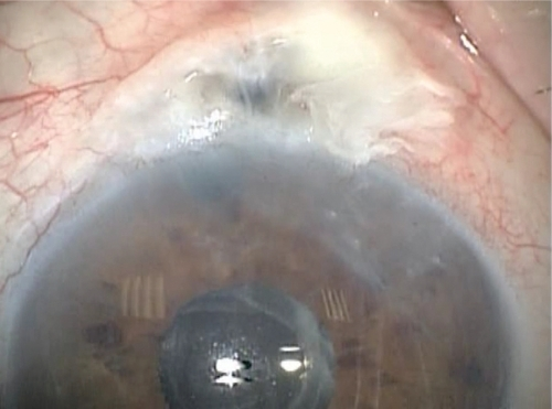 At presentation; note the extremely thin and avascular bleb and the descemet folds in the cornea secondary to hypotony.