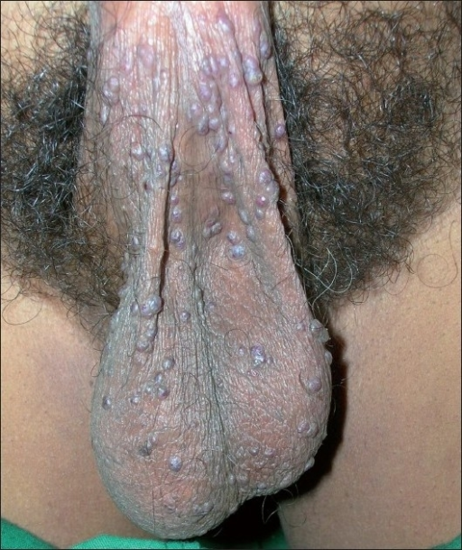 Multiple small, keratotic, vascular papules on scrotum