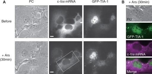 The real time imaging of endogenous c-fos mRNA in SGs. (A) PC and fluorescence images of endogenous c-fos mRNA and GFP-TIA1 in COS7 cells before and 30 min after arsenite treatment. Endogenous c-fos mRNA was visualized by acquiring FRET fluorescence from streptavidin-bound linear antisense 2′OMeRNA probes. The probe concentration inside the cell was 0.76 ± 0.24 µM. (B) Co-localization of TIA-1 (green) and endogenous c-fos mRNA (magenta) in SGs. Images of cells are enlarged from boxed area in (A). Scale bars, 10 µm.