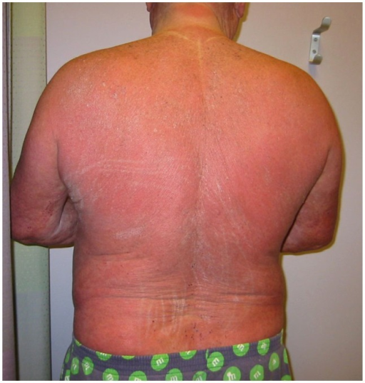 Patient With Sézary Syndrome Presenting Clinically Wit