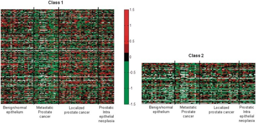 Genes in Class 1 shows distinctive pattern in metastatic prostate cancer while Class 2 shows less distinctive markings. Color represents log2 ratios of expression. When the expression value is not available, it is denoted by gray color.