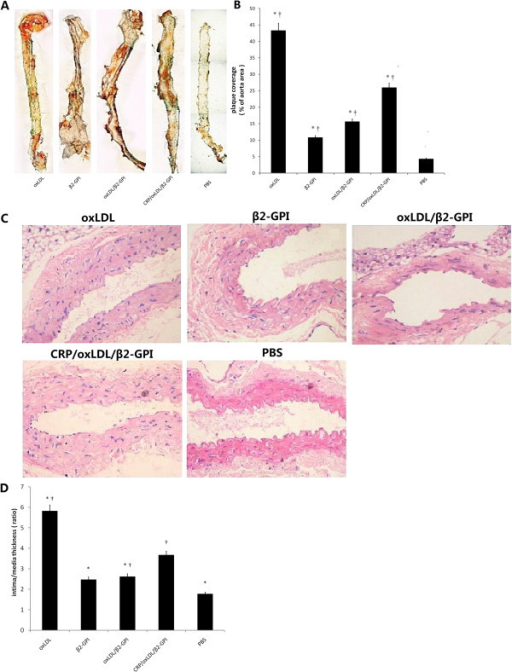 Histological quantitation of the AS lesion in aortas. After induction of diabetes and treatment with 20 μg oxLDL, 20 μg β2GPI, 40 μg oxLDL/β2GPI complex, 44 μg CRP/oxLDL/β2GPI complex and PBS (as described in the Methods section), aortas were removed, longitudinally cut open,stained with Sudan IV, or paraffin-embedded, sectioned, deparaffinated and then stained with haematoxylin and eosin. The quantitation of the AS lesion and intima thickness were measured using Image Pro-Plus 6.0. The percentage of the plaque area to the total aorta area and the ratios of intima/media thickness of lesions at the aortic roots were calculated. Results are shown as means ± SEM. A: Representative images of Sudan IV stain(4×). B: Percentage of plaque area to total aorta area (n=4 mice per group). *P < 0.05, compared with the CRP/oxLDL/β2GPI group, †P < 0.05, compared with the PBS group. C: Representative H&E stain at the root of the aortas, 200× magnification. D: The ratios of intima/media thickness of lesions at the aortic roots (n=4). *P < 0.05, compared with the CRP/oxLDL/β2GPI group, †P < 0.05, compared with the PBS group.