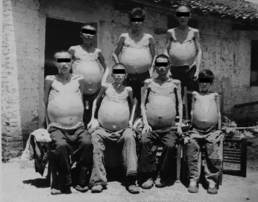 Collective photo of male advanced cases with ascites in the Guizi County Anti-schistosomiasis Hospital in 1959 (Author's collection).