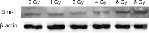 Western blot analysis demonstrating that ionizing radiation increased Bmi-1 expression. β-actin was used as a loading control.
