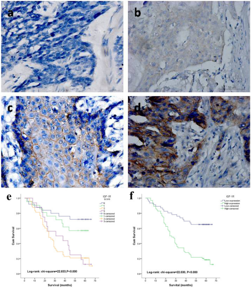 Immunohistochemistry in resected human ESCC tumors.(a) Negative expression of IGF-1R (original magnification x400). (b) Weak cytoplasmic and membranous expression of IGF-1R in ESCC cells (x400). (c) Moderate and mainly membranous expression of IGF-1R in ESCC cells (x400). (d) Strong membranous expression of IGF-1R in ESCC cells (x400). Kaplan–Meier life-table analyses of the overall survival (OS) rate according to four categories (e) and two categories (f) of IGF-1R expression levels (P<0.000 and 0.000 respectively).
