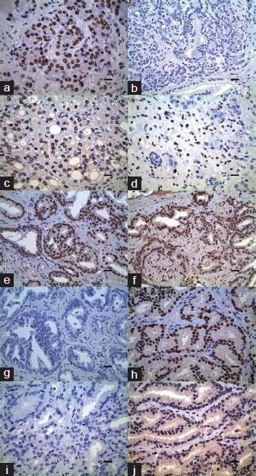 Immunohistochemical analysis in prostate adenocarcinoma. (a) Androgen receptor (AR) expression (diaminobenzidine (DAB)), Gleason (4 + 5) score 9, HSCORE 260, scale bar = 8 µm. (b) Estrogen receptor (ER(α)) expression (DAB), Gleason (4 + 5) score 9, HSCORE 0 with sparse positive cells in cancer, scale bar = 12.5 µm. (c) ER(β) expression (DAB), Gleason (4 + 5) score 9, HSCORE 180, scale bar = 8 µm. (d) ER(α) expression (DAB), Gleason (3 + 4) score 7, HSCORE 25 with positive staining in the stromal cells, scale bar = 8 µm. (e) AR expression (DAB), Gleason (3 + 3) score 6, HSCORE 270, scale bar = 12.5 µm. (f) ER(β) expression (DAB), Gleason (3 + 3) score 6, HSCORE 60, scale bar = 12.5 µm. (g) ΕR(α) expression (DAB), Gleason (3 + 3) score 6, HSCORE 0, scale bar = 12.5 µm. (h) AR expression (DAB), Gleason (3 + 4) score 7, HSCORE 300, scale bar = 8 µm. (i) ER(α) expression (DAB), Gleason (3 + 4) score 7, HSCORE 0 with single cell positivity, scale bar = 8 µm. (j) ER(β) expression (DAB), Gleason (3 + 4) score 7, HSCORE 0, scale bar = 8 μm.
