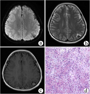 Cystic meningioangiomatosis with a multiple microcystic pattern. (a, b) DWI and T2WI demonstrated a low signal intensity nodule in the left parietal cortex and multiple small cysts surrounding it. (c) On post-contrast MRI, the nodule was remarkably enhanced. (d) Microscopically, fibroblast-like spindle cells were arranged in a spiral shape around multiple vessels, and the cortical neurons were entrapped within the lesion.