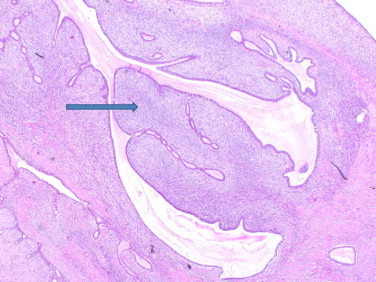 (H&E) phyllodes tumour with leaf-shaped formation of ductal-carcinoma in situ.