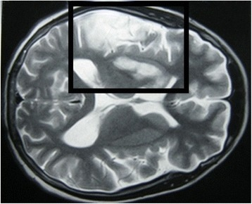 Magnetic resonance image: transverse section of the brain 1 month after the onset of illness. This section shows new involvement of the right cerebral cortex (right middle meningeal arterial territory) with vasogenic edema