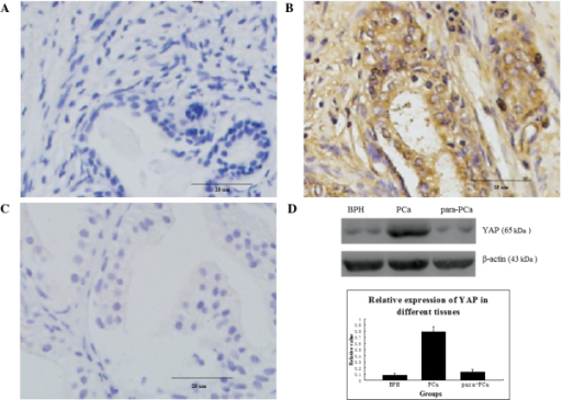 Immunohistochemical analysis of protein expression in 32 samples of PCa tissue, 15 samples of BPH tissue and 15 samples of para-PCa tissue. (A) Protein expression of YAP in BPH (magnification, ×400); (B) Overexpression of YAP protein in PCa (magnification, ×400); (C) Protein expression of YAP in para-PCa tissue (magnification, ×400); The difference in the expression of YAP was significant between PCa and BPH (P=0.007), and between PCa and para-PCa (P=0.002); (D) Expression of YAP in different prostatic cells, analysed using western blotting, in all tissues. Data are expressed as the mean ± standard deviation. PCa, prostate cancer; YAP, Yes-associated protein; BPH, benign prostatic hyperplasia.