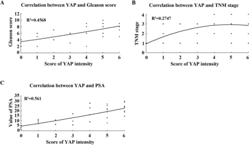 Correlation between YAP and Gleason score, TNM stage and PSA level using curve estimation regression analysis. (A) Correlation between YAP and Gleason score, in which a positive trend was observed between them. (B) Correlation between YAP and TNM stage. The integrating degree was not perfect between the linear and quadratic or cubic curve. (C) A positive correlation was also observed between YAP and PSA levels. PSA, prostate specific antigen; YAP, Yes-associated protein; TNM, tumour-node-metastasis.