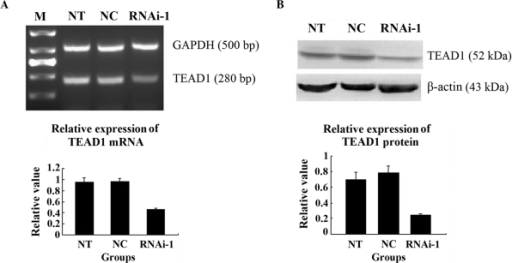 mRNA and protein expression of TEAD1 in the different groups of cells. (A) mRNA expression of TEAD1 was lower in the RNAi-YAP-1 group, determined using reverse transcription-quantitative polymerase chain reaction. (B) Protein expression of TEAD1 was lower in the RNAi-YAP-1 group, determined using western blotting; The mRNA and protein expression levels of TEAD1 were inhibited following YAP knockdown. Data are expressed as the mean ± standard deviation; *P<0.05, **P<0.001 vs. control. RNAi, RNA interference; YAP, yes-associated protein; NT, non-transfected; NC, negative control; TEAD1, TEA domain family member 1; M, marker.
