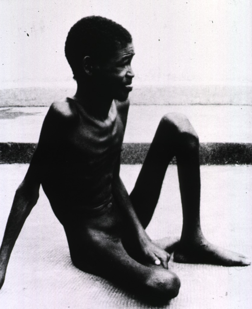 <p>A naked emaciated man is sitting on the ground: a victim of sleeping sickness.</p>