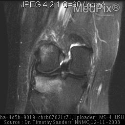 T2 cor image demonstrates high signal within the marrow of the lateral femoral condyle and the lateral tibial plateau representing bone marrow edeam.