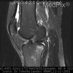 T2 Sag complete tear ACL mid portion 1