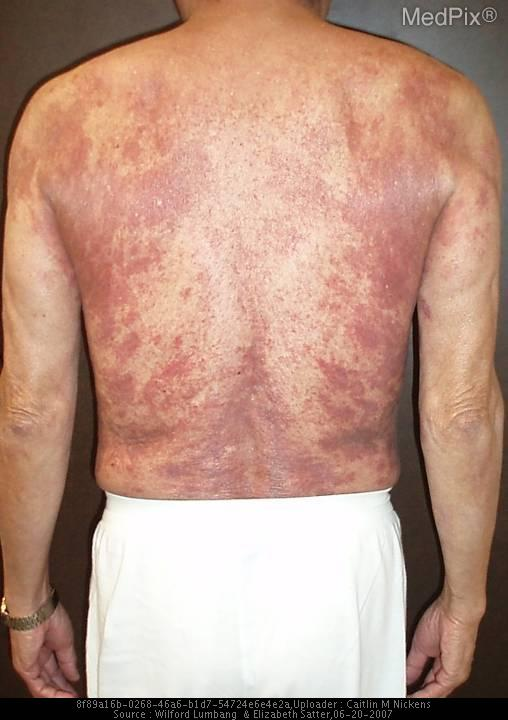 A patient with xanthogranulomatous dermatitis.
