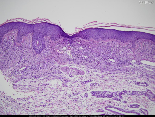 Histology of xanthogranulomatous dermatitis.