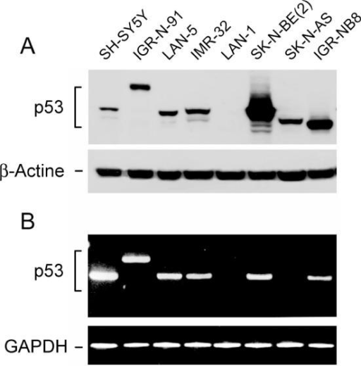p53 expression of different neuroblastoma cell lines. (A) Western blot from protein total extracts (upper panel); β-actin was used as loading control (lower panel). (B) RT–PCR using F1-R7 primers (Table 1); amplified fragment was normalized by GAPDH.