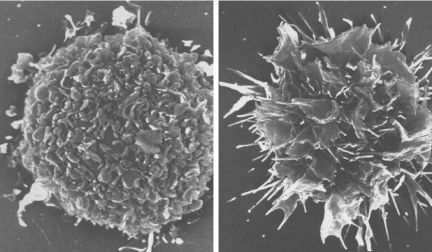 immature dendritic cells - photo #2