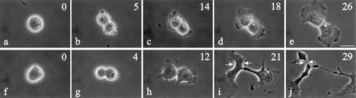 Time lapse images of control 3T3 fibroblasts and cells microinjected with C3 at metaphase. Approximate time in minutes relative to anaphase onset is located in the upper right corner. Control cells (a–e) maintained a very short cleavage furrow. C3-injected cells  (f–j) developed abnormalities very similar to those in NRK cells when they started to respread (compare h–j with Fig. 1, h–j), forming  both elongated furrows and ectopic ingressions. The latter resulted in the formation of anuclear fragments (i and j, arrows). Bar, 20 μm.