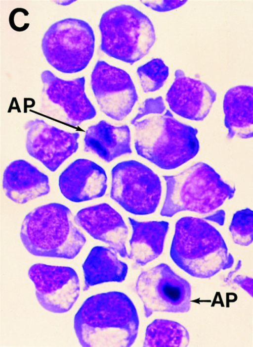 Morphology of RAS-expressing erythroid cells. (A) Control-infected cells purified by cell sorting, (B–C) corresponding RAS-infected cells.  PE, proerythroblast; IE, intermediate erythroblast; LE, late erythroblast; AP, apoptotic cell. Original magnification, ×1000.