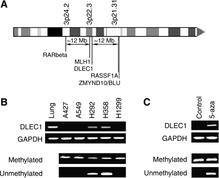 (A) Schematic drawing of the short arm of chromosome 3 and the relative location of the RARβ, MLH1, DLEC1, RASSF1A and BLU genes. (B) DLEC1 (NM_005106) and GAPDH expression using RT–PCR (two upper panels) and methylation status using MSP (two bottom panels) in lung cancer cell lines and in normal human lung tissue. (C) Restoration of DLEC1 expression and concomitant demethylation of the CpG island in H1299 cells using the 5-aza treatment.