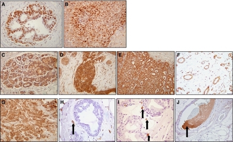 Immunohistochemical staining for HIF-1α, VEGF and TF. (A) Nuclear HIF-1α staining in the ductal epithelial cells of an ADH case and (B) tumour cells of an invasive cancer. (C) Weak expression of VEGF in normal breast epithelium (score=1), (D) strong expression in florid usual ductal hyperplasia (score=2/3) and (E) strong staining localised to tumour cells within invasive breast carcinomas (score=3). (F) VEGF expression in ECs in normal breast tissue. (G) Tumour cells expressed TF in approximately 55% of invasive breast cancer specimens. (H) TF was expressed in ECs associated with benign hyperplastic tissue (arrow). (I) Putative macrophages expressing TF associated with areas of DCIS (arrows). (J) TF expressed in vessel containing thrombosis (arrow). Photographs A–E and G were taken at × 20 magnification and all others at × 40 magnification.