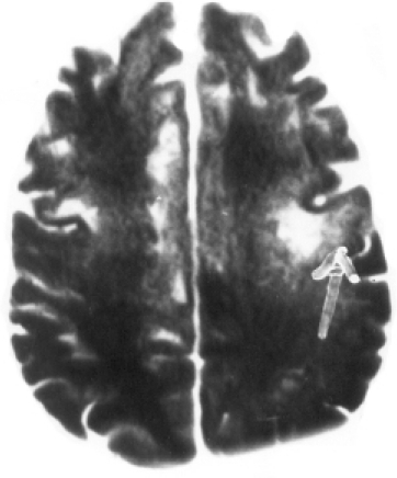 T1W axial image at the level of the centrum semi-ovale. Multiple focal hypointense lesions are seen bilaterally in the subcortical white matter of the frontal lobe causing widening of the overlying gyri on the left side (arrow).