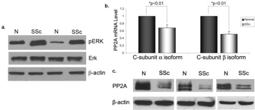 Increased extracellular signal-regulated kinase (ERK)1/2 phosphorylation and decreased protein phosphatase 2A (PP2A) expression in scleroderma (SSc) fibroblasts. Dermal fibroblasts obtained from SSc patients and matched controls were grown to confluence and then serum starved for 24 h. Cells were collected and in (a) the levels of ERK1/2 phosphorylation were analyzed by western blot. In (b), the mRNA levels of the PP2A catalytic subunits α and β were analyzed using quantitative PCR. The mRNA values were normalized relative to matched controls (arbitrarily set as 1) and means ± standard error of the mean (SEM) of five independent experiments are shown (*P < 0.01). (c) The total protein levels of the PP2A catalytic subunit were measured by western blot. β Actin was used as a loading control.