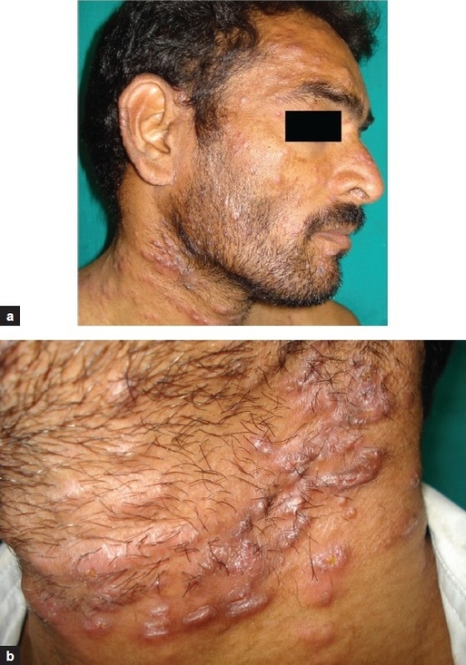 (a) Papules and nodules of LMDF over the face and neck. (b) Close up of neck