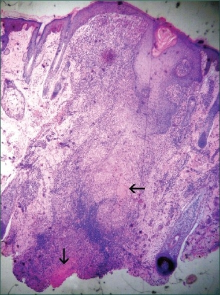 Photomicrograph showing epidermis and dermis with granulomatous infiltrate with caseous necrosis in superficial dermis around appendages as well as deep dermis (hematoxylin and eosin ×40)