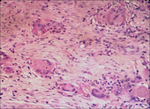 Photomicrograph demonstrating epithelioid cell granulomas with many giant cells (hematoxylin and eosin ×400)