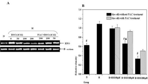 The changes of EPO expressions by RT-PCR measurement. Letter N means the cells under normoxic condition; Letter H means the cells under hypoxic condition: (A) The representative gel picture was taken from three separate RT-PCR experiments. (B) Compared with hypoxic control, the analysis of relative densities showed that there was statistical difference the experimental cells by 100 and 200 μM BSO pretreatment respectively (#p < 0.01). After NAC incubation, the expression of EPO was elevated again, and there were significant difference between the group with 100 μM NAC treatment and that without NAC treatment (▲P < 0.01).