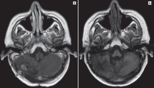 Magnetic resonance showed (a) cerebellar relapse after consolidation therapy and (b) complete response after fotemustine salvage therapy.