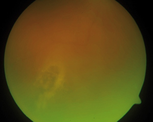 Peripheral focus of retinal necrosis in the course of healing.