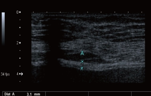 Measurement of bladder wall thickness at the anterior wall with bladder filling over 250 mL.