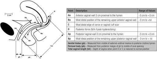 A diagrammatic representation of Pelvic Organ Prolapse ...