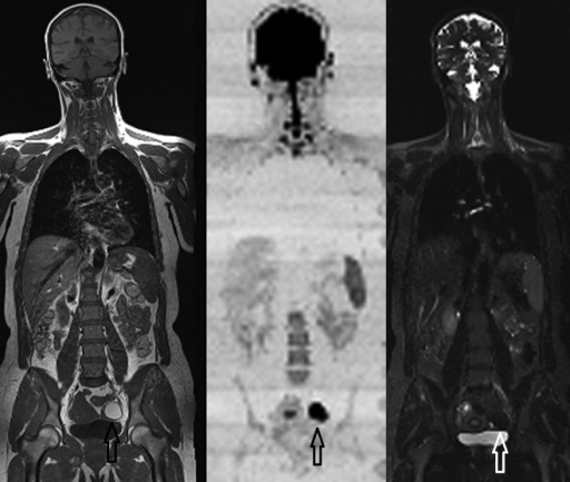 Whole-body coronal T1, DWI (b-500 shown as black on white), and STIR images demonstrating the conspicuity of the left adnexal subacute hemorrhage in an endometrioma due to the paramagnetic effects and restricted diffusion of blood degradation products.