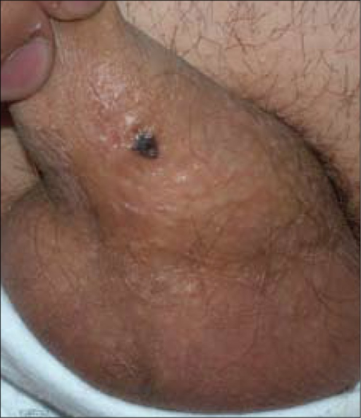 Typical melanocytic nevus on the shaft of the penis.