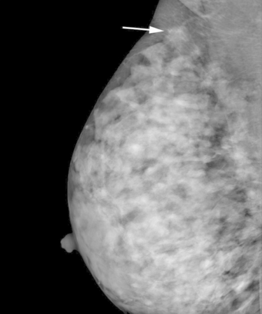 Mammography revealing an isodense and irregular spiculated mass (white arrow).