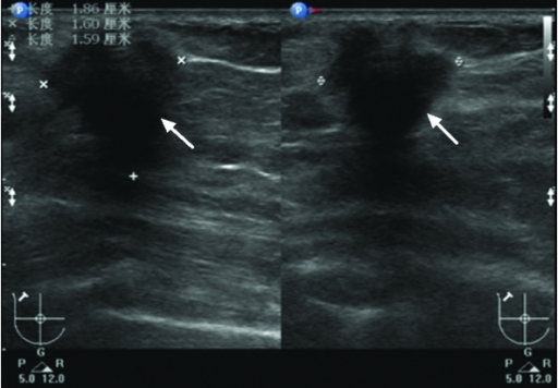 Ultrasound of the lesion showing a definite hypoechoic mass with angular margins, spiculations and an acoustic shadow posterior to the mass.