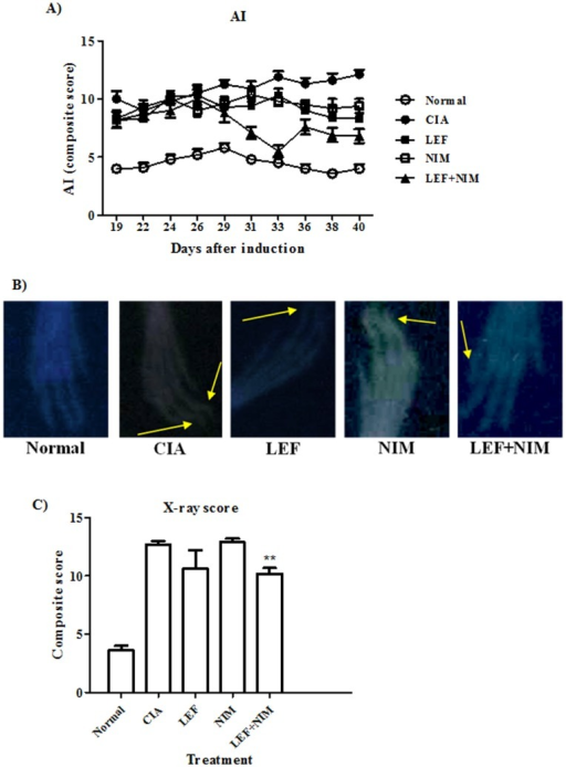 Assessment of disease progression.Mice with CIA were treated with leflunomide (LEF: ▪), nimesulide (NIM: □), or leflunomide+nimesulide (LEF+NIM: ▴) and compared to untreated arthritic (○) and normal mice (•). Arthritic index (AI) of mice was recorded over the duration of 40 days (A). Hind paws of mice were x-ray imaged at day 40 (B) and given a radiological score (C) as shown in the methods section. Data are presented as mean ± SD. ** Significantly different from CIA-mice.